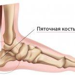19 причин болей в пяточных костях сзади