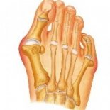 Лечение шишки на пальцах ног народными средствами