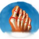 Почему опух (воспалён) большой палец ноги?