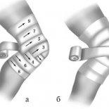 Как и когда накладывать черепашью повязку на коленный сустав?