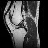 Как выбрать лучший способ диагностики коленного сустава: МРТ или КТ?