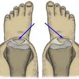 Вывих коленного сустава— как лечить?