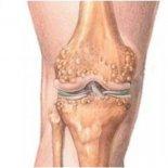 В каких случаях проводятся операции на колене, что удаляют?