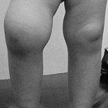 Опухают колени— при каких болезнях и травмах