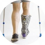 Можно ли избежать боли после перелома лодыжки?