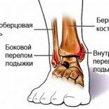 Лечебная физкультура при переломах лодыжки
