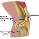 Признаки и лечение перелома мыщелка колена