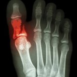 Что делать если сломан большой палец на ноге?