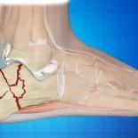 Что делать при переломе пятки (пяточной кости)