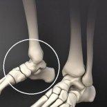 Чем опасны болевые ощущения в суставе ног у стопы?