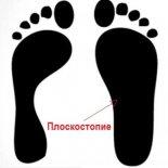 5 правил лечения плоскостопия