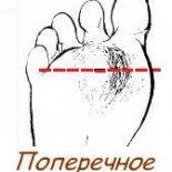 6 причин развития поперечного плоскостопия