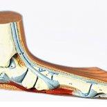 Степени продольного плоскостопия— как определять?