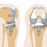 Замена коленного сустава— ответы на популярные вопросы
