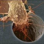 Фиброма, саркома, рак коленного сустава