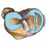 Другие травмы мениска коленного сустава, рекомендации к лечению