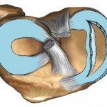 Разрыв мениска коленного сустава— возможно ли лечение без операции?