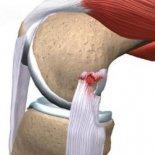 Как проявляется и лечится разрыв связок коленного сустава?