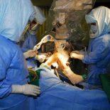Виды и способы проведения артропластики коленного сустава