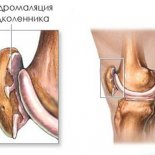 Хондромаляция коленного сустава: симптомы, степени и лечение
