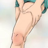 Виды смещения коленного сустава приобретенного и врожденного характера