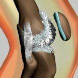 Причины отложения солей в коленных суставах