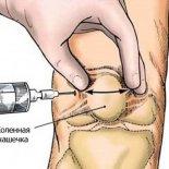 Как действуют инъекции гиалуроновой кислоты в коленном суставе?