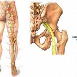 Защемление нерва в колене