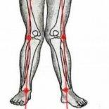 Деформация коленных суставов: виды и лечение