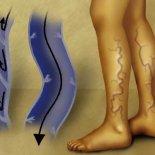 Что делать с варикозом под коленом и куда обратиться?