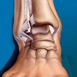 Сколько ходить в гипсе при трещине лодыжки?