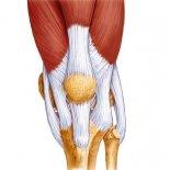 Как справиться с лигаментозом колена?