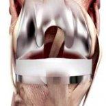 Как проводится замена коленного сустава— подготовка и сам процесс?